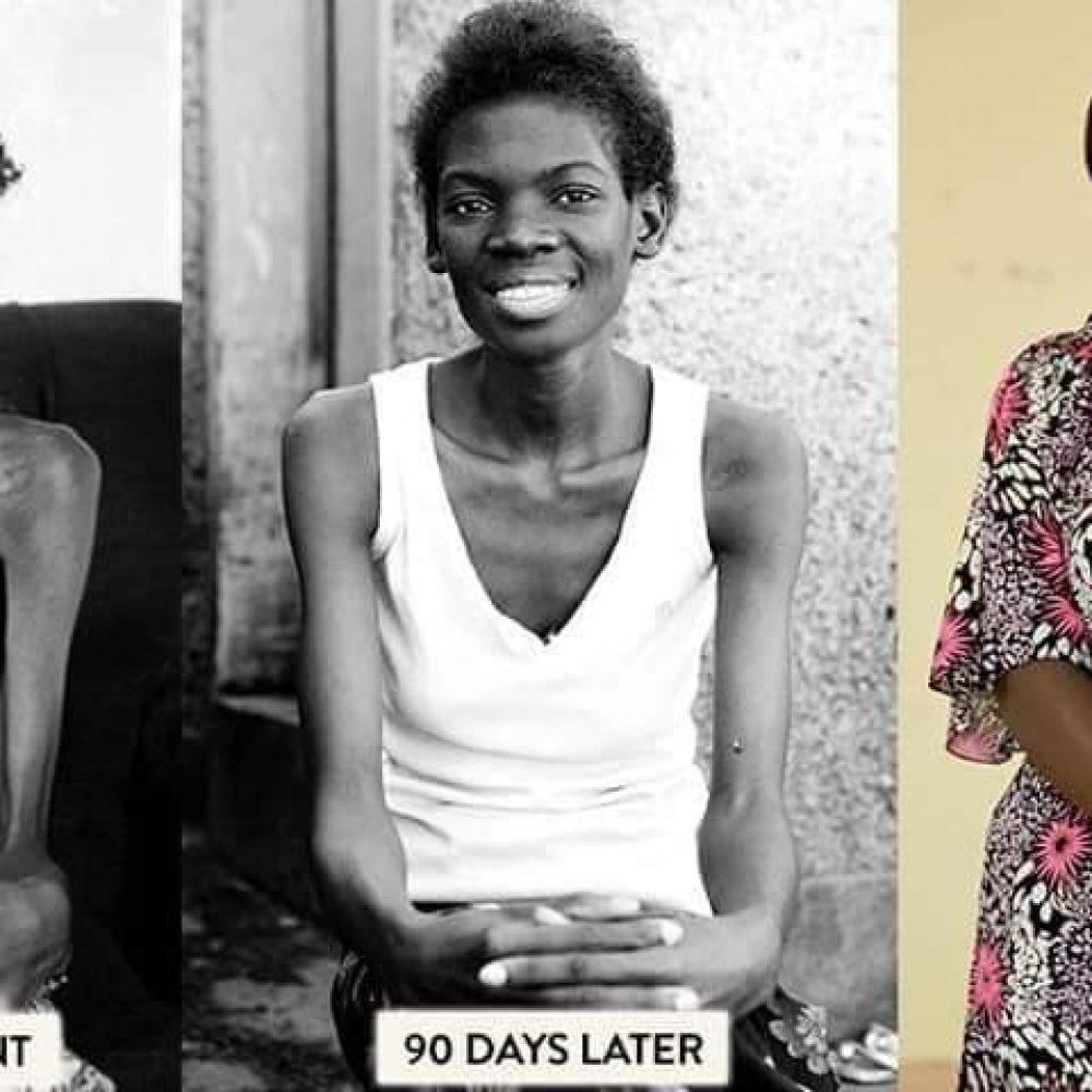 Gabon-Dr Donatien Mavoungou – Traitement du VIH sida