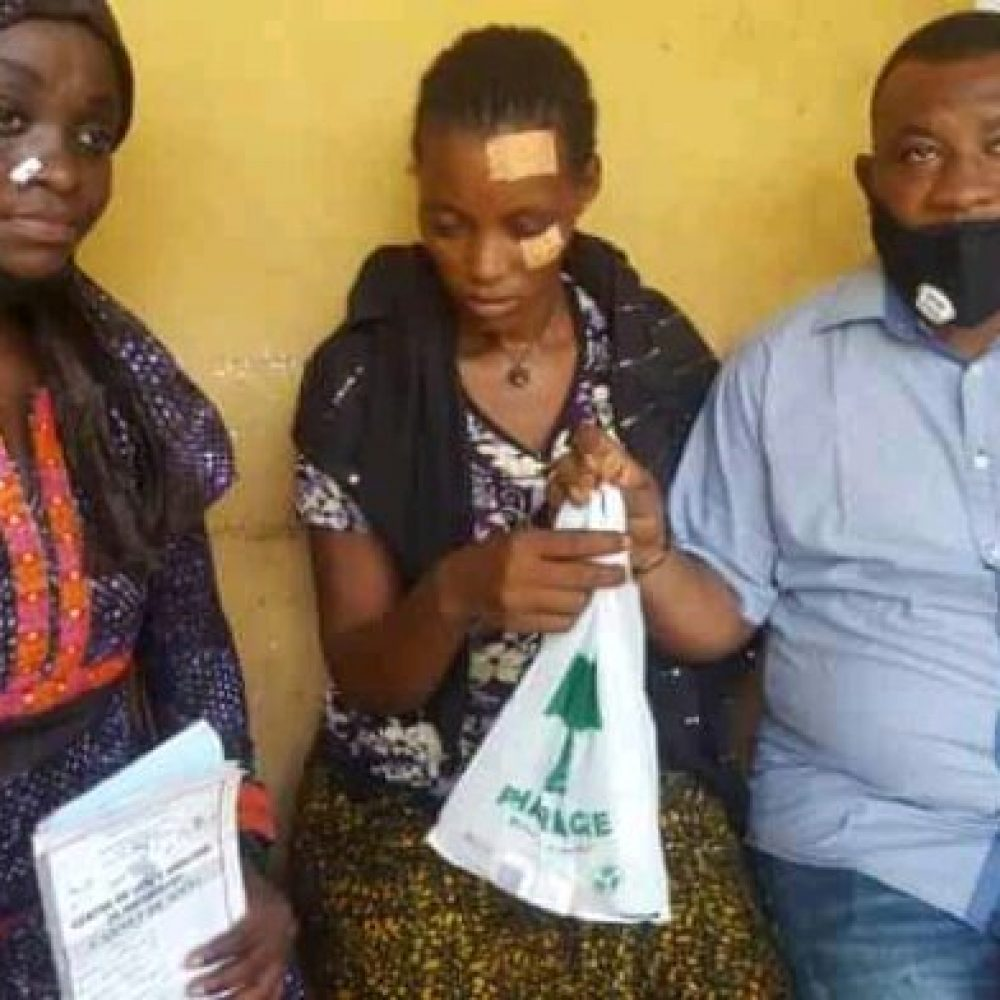 "USA/WEST AFRICA – BENIE FOUNDATION INC. HEBDO INFO: "" VIOLENCES SUR M'MAMY SOUMAH : Bénie Foundation au chevet de la victime (Guinée C.)"""